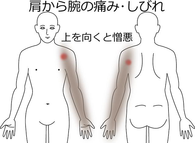 肩から腕の痛み・しびれで上を向くと憎悪するの画像