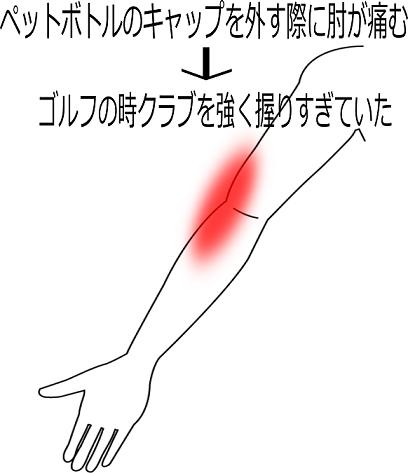 肘の痛みの症例3の画像