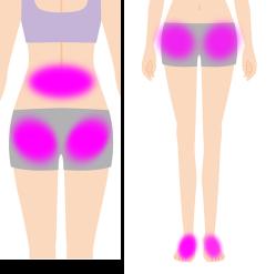 膝の痛みの原因個所のイラスト