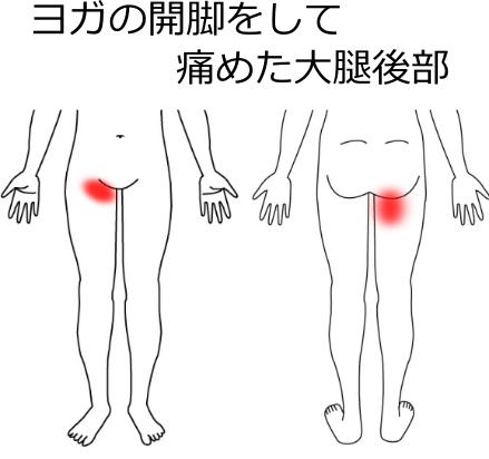 肉離れの症例:3、ヨガの開脚をして痛めた大腿後部の説明画像